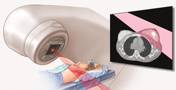Radiation-Therapy-Machine-Picture
